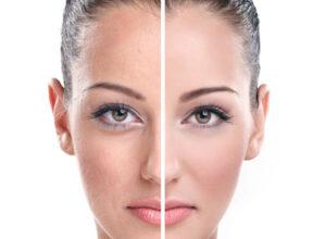 خواص آویشن و فواید دمنوش آن برای پوست صورت و درمان بیماری