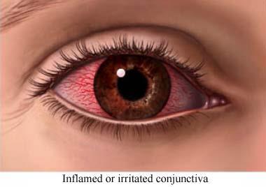 روش جلوگیری از خشکی چشم