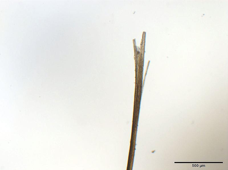 عکسی از موخوره با میکروسکوپ