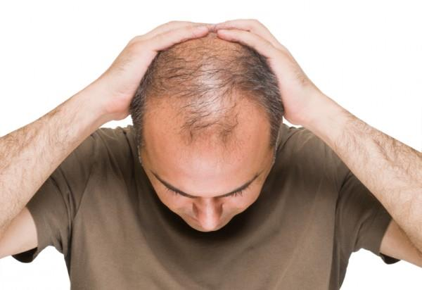 باور های غلط در مورد ریزش مو