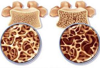 پیشگیری از پوکی استخوان, مراقبت از استخوانها