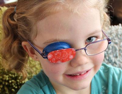 علل انحراف چشم,درمان انحراف چشم در کودکان