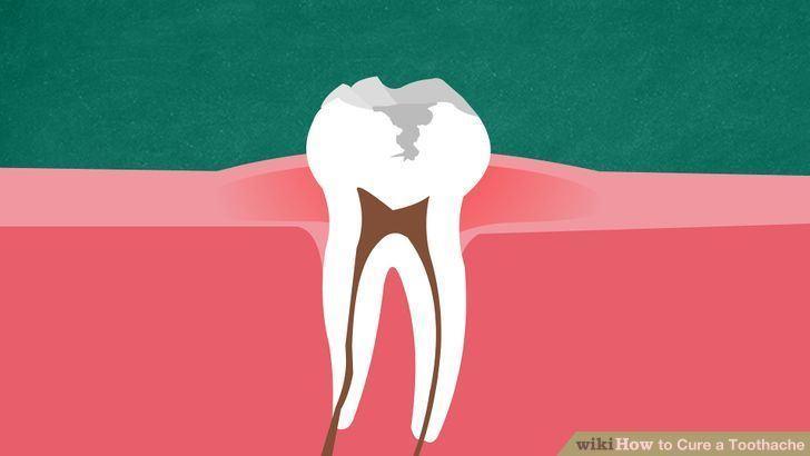 درمان دندان درد شدید