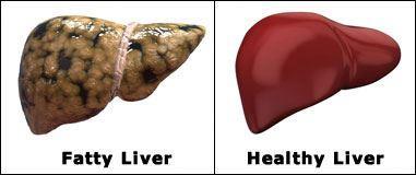 درمان کبد چرب و علایم و نشانه های تشخیص این بیماری