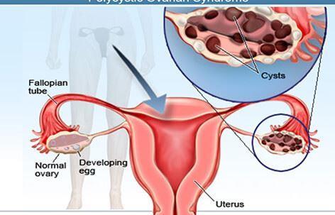 انواع کیست تخمدان٬ تنبلی تخمدان٬ جراحی کیست تخمدان٬ داروی کیست تخمدان