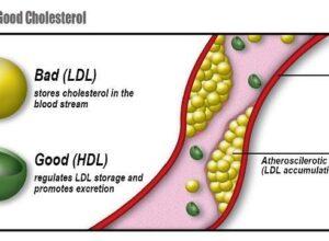 از بین بردن چربی خون LDL و راه های کنترل آن با استفاده از رژیم غذایی