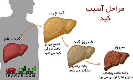 درمان کبد چرب با عرقیات گیاهی