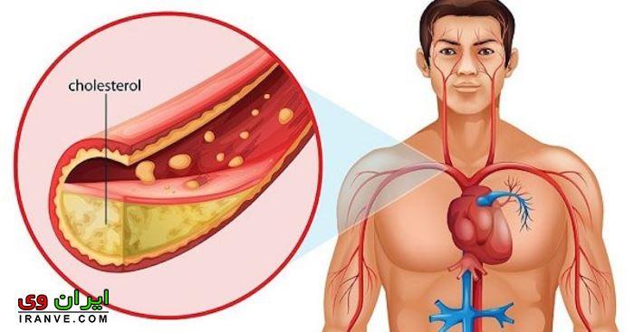 خواص زنجبیل برای کاهش فشار خون