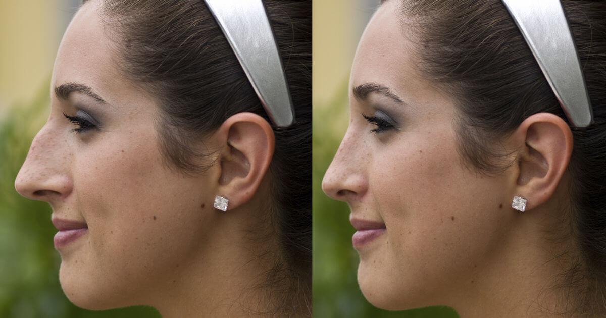 کوچک کردن بینی با گیاه دارویی و روش خانگی