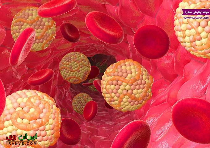 علائم چربی خون بالا چیست؟