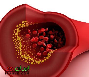 علائم بالا بودن چربی خون چیست؟