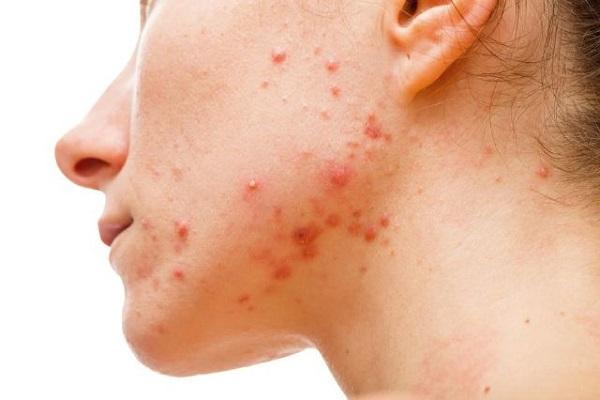 5 ماده برای سمزدایی کامل پوست