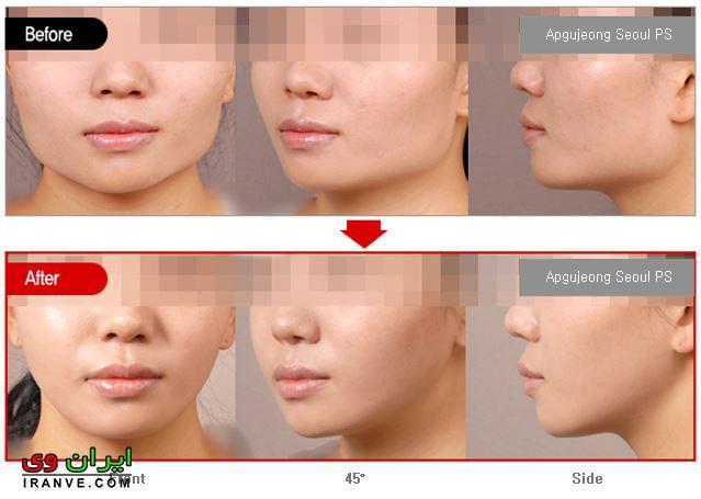 زاویه دار کردن صورت چیست