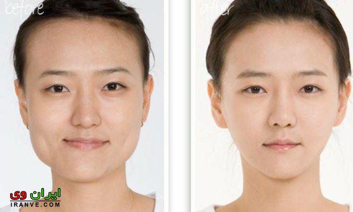 ورزش زاویه دار کردن صورت