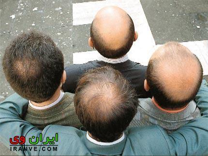 جلوگیری ریزش مو مردان