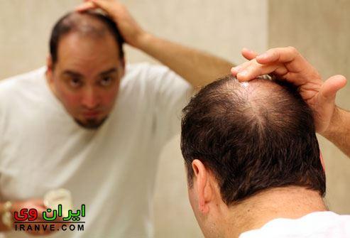 راه های جلوگیری از ریزش مو در مردان