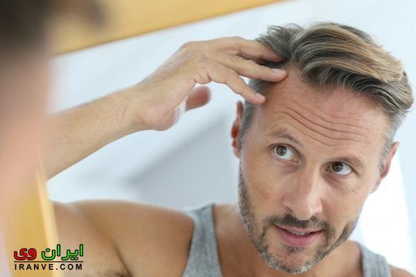 جلوگیری از ریزش مو مردان