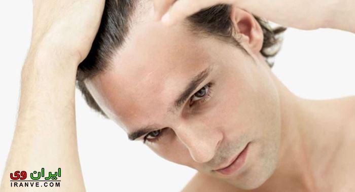 جلوگیری از ریزش موی مردان