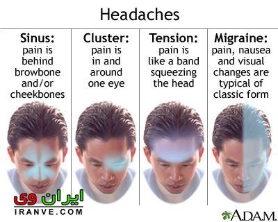 درمان سردرد شدید چیست