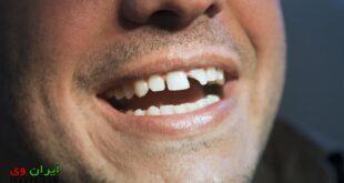 تعبیر خواب دندان شکسته چیست؟