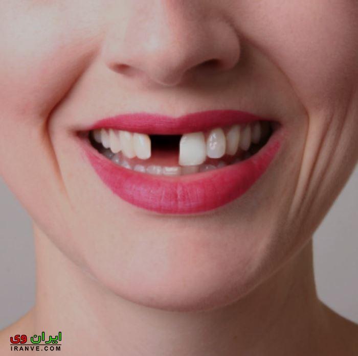 تعبیر خواب دندان عقل و معنای آن