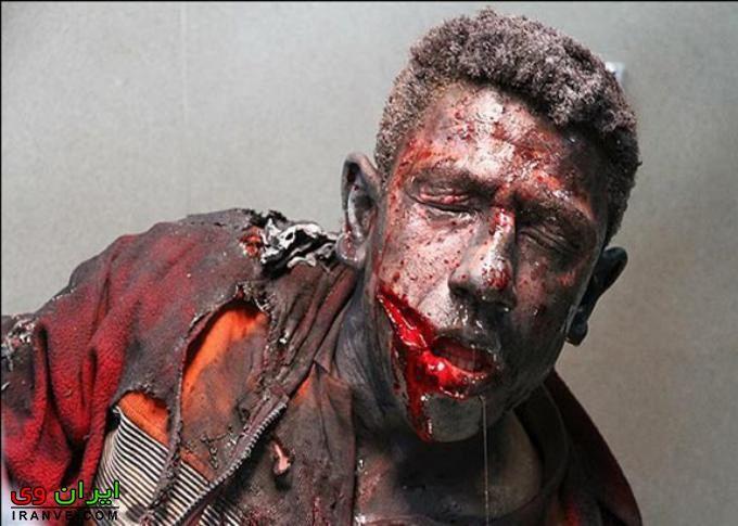 عکس حوادث چهارشنبه سوری نقص عضو و سوختن بدن قطع شدگی